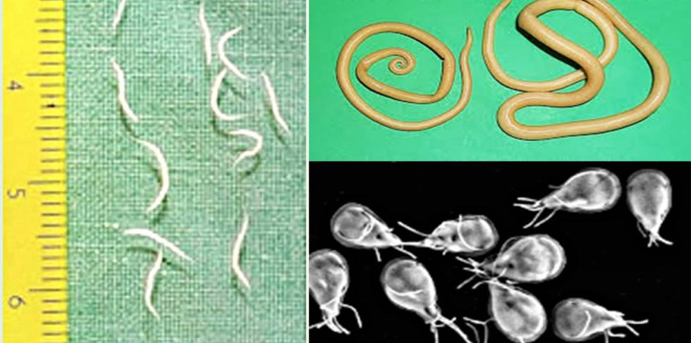 las lombrices intestinales oxiuros)