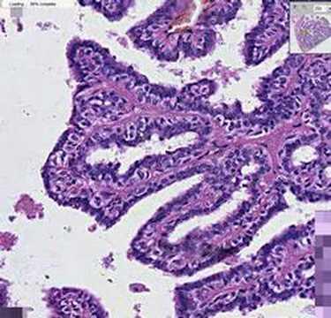 malignant ductal papilloma)