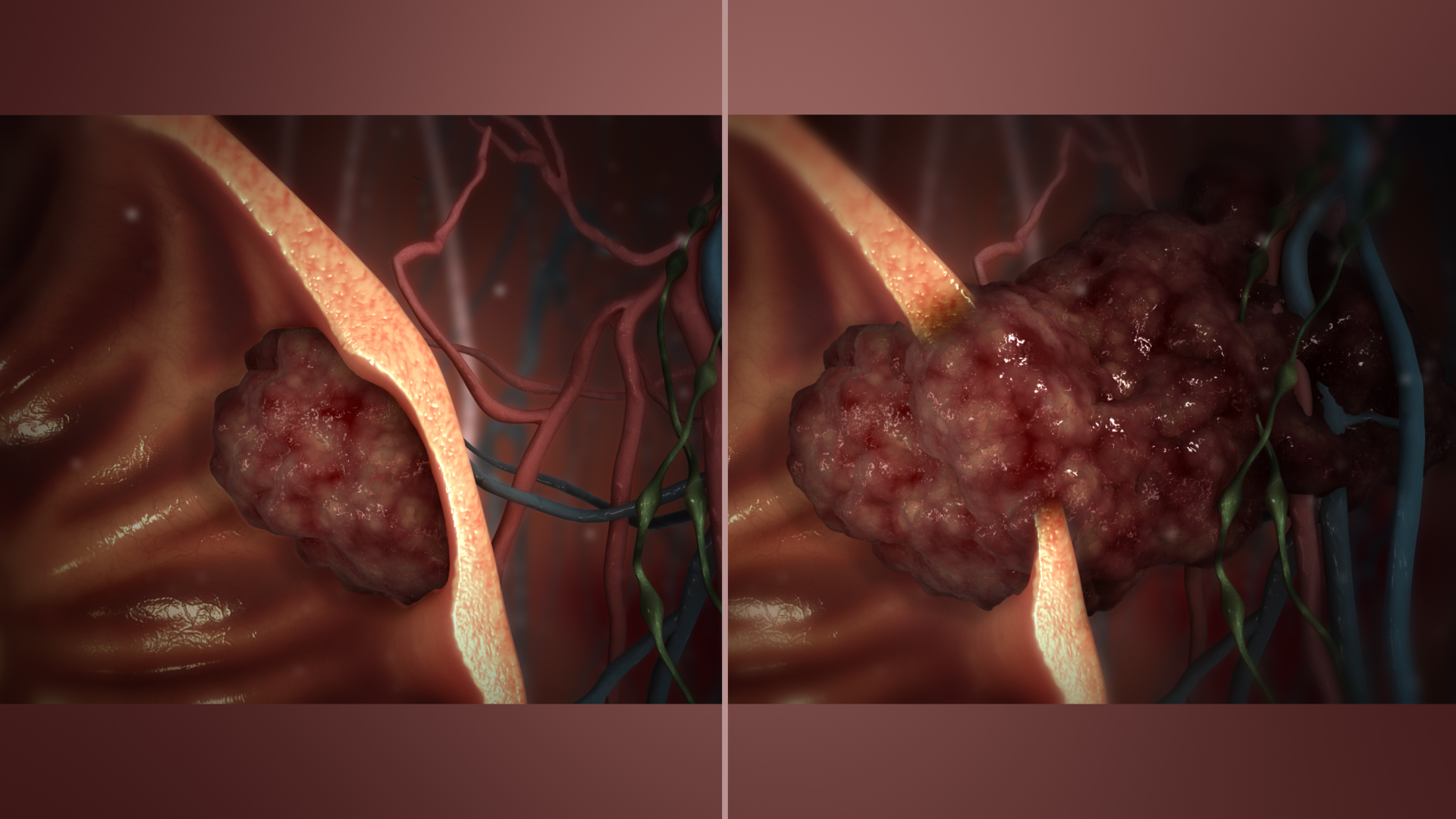 malignant neoplasm cancer