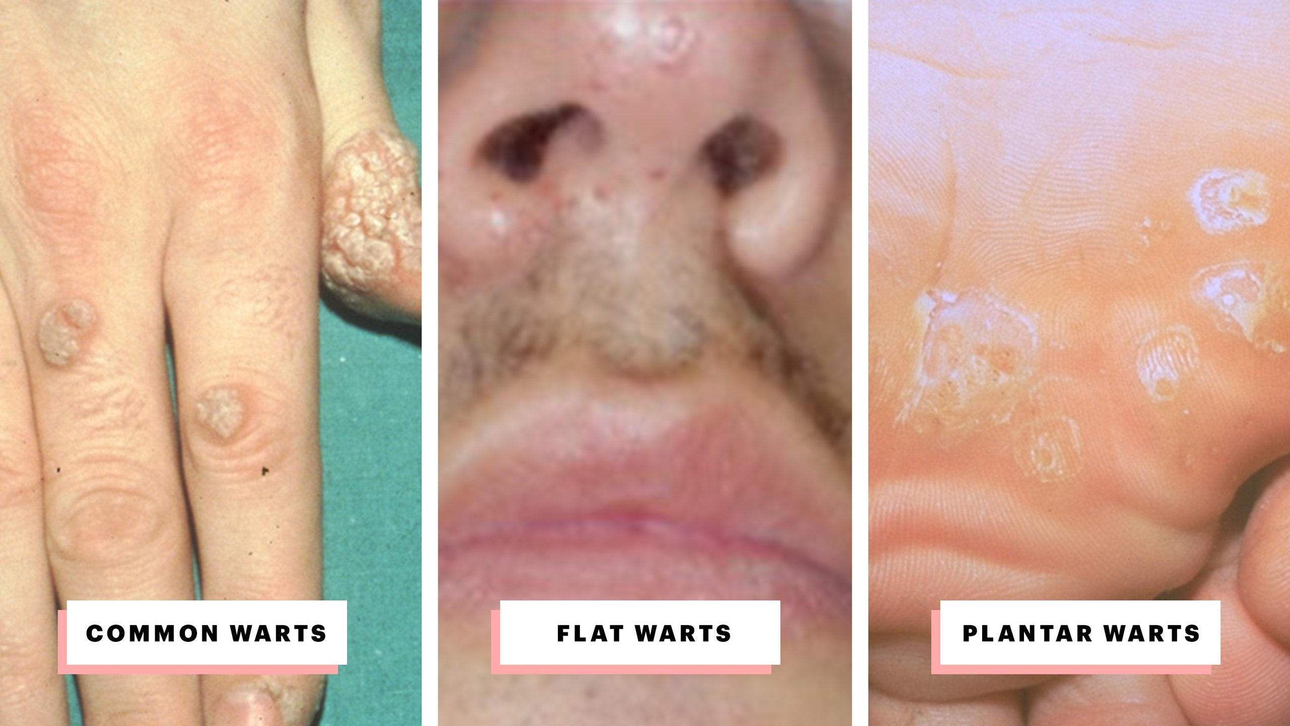 mouth warts go away