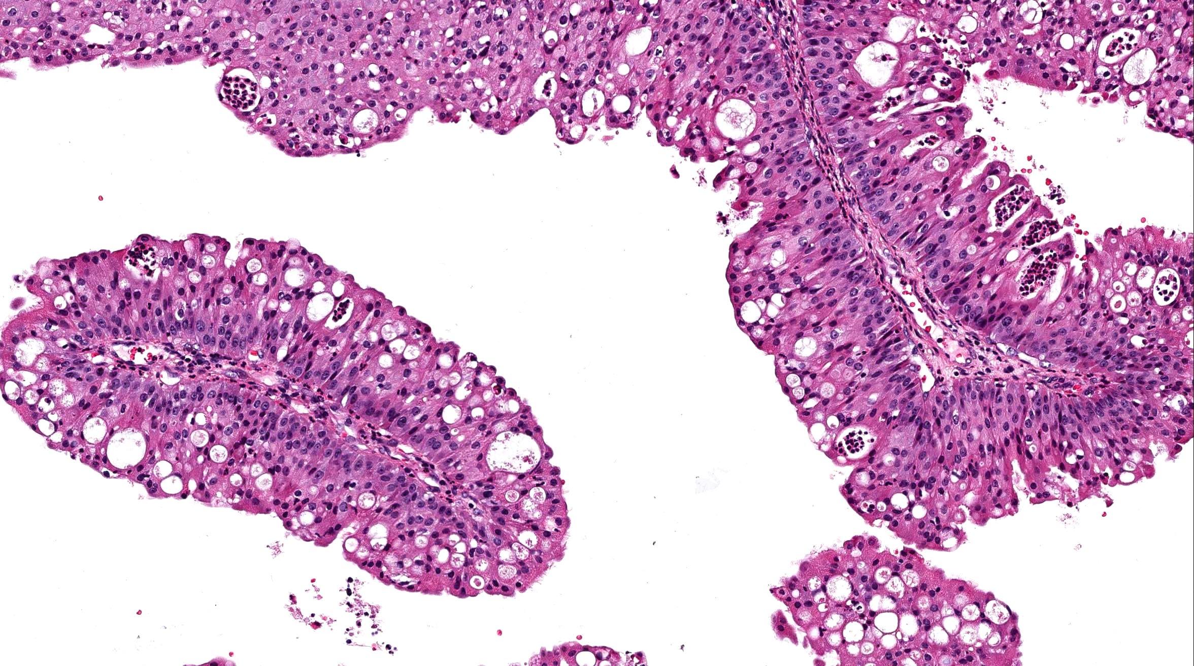 nasal papilloma hpv)
