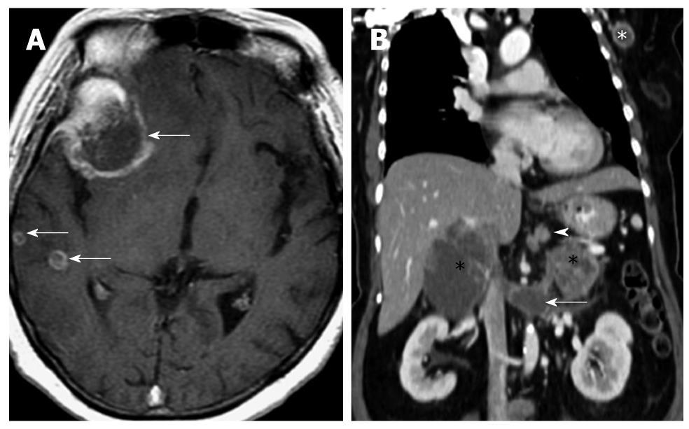neuroendocrine cancer brain metastases