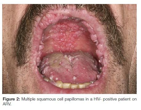 non hpv tongue cancer
