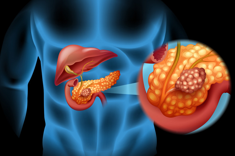 pancreatic cancer chemotherapy