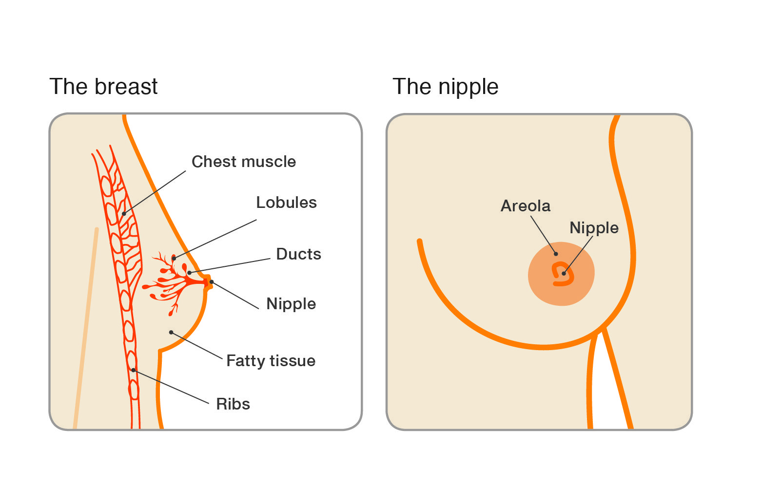 papilloma breast meaning