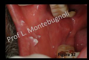 papilloma dorso lingua)