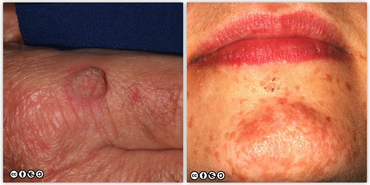 papilloma lesion on skin)