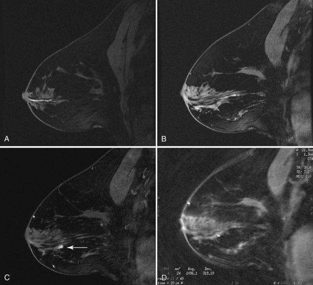 papilloma on breast mri)