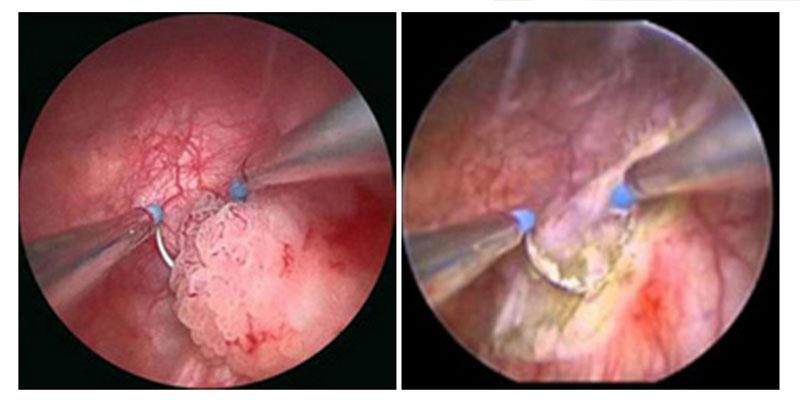 papilloma vescicale sintomi