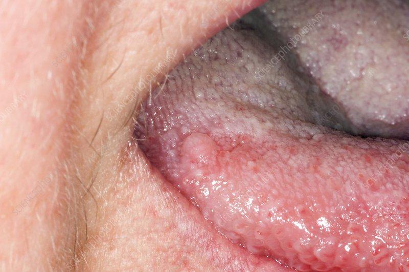 papillomas on tongue