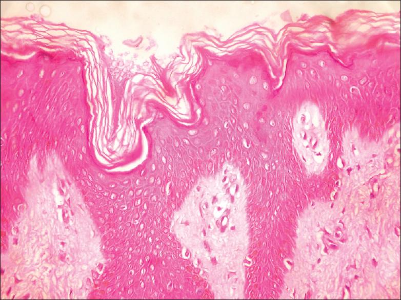 papillomatosis and acanthosis