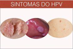 papillomavirus cura)