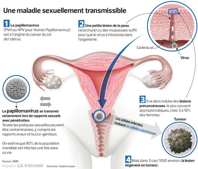 papillomavirus detection chez lhomme