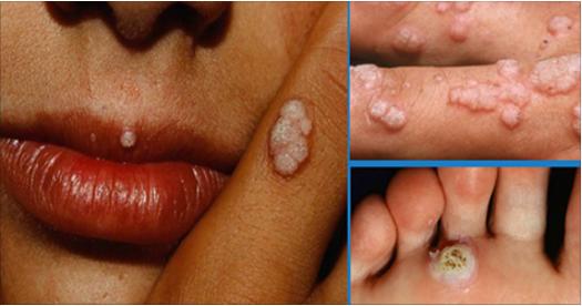 HPV și cancerul de col uterin