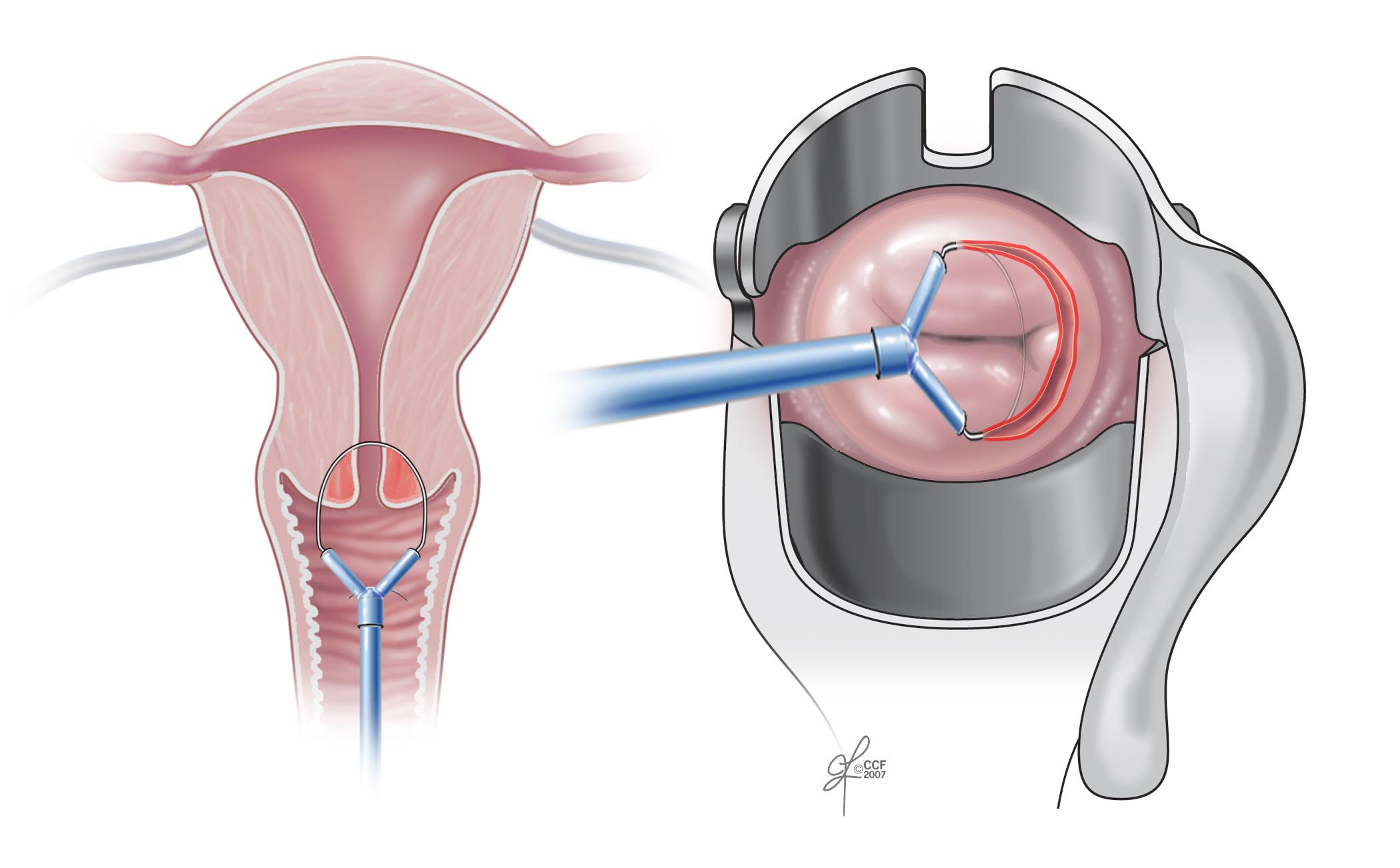 papillomavirus uterus symptoms)