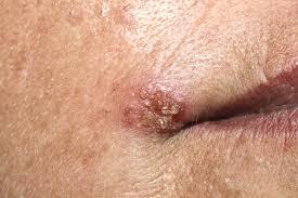 papiloma humano virus sintomas