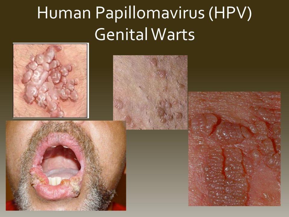 penyakit human papillomavirus