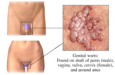 penyakit papilloma virus