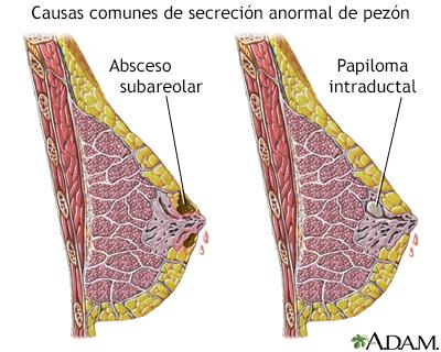 que es papilomas intraductales)