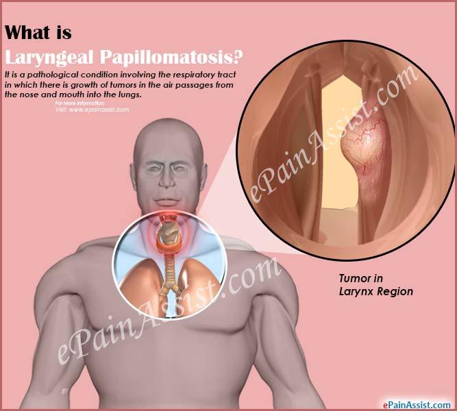 respiratory papillomatosis how to treat