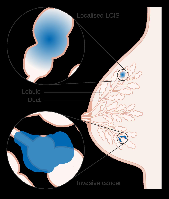 right breast papilloma icd 10
