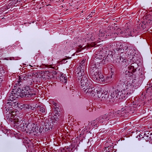 schistosomiasis pulmonary