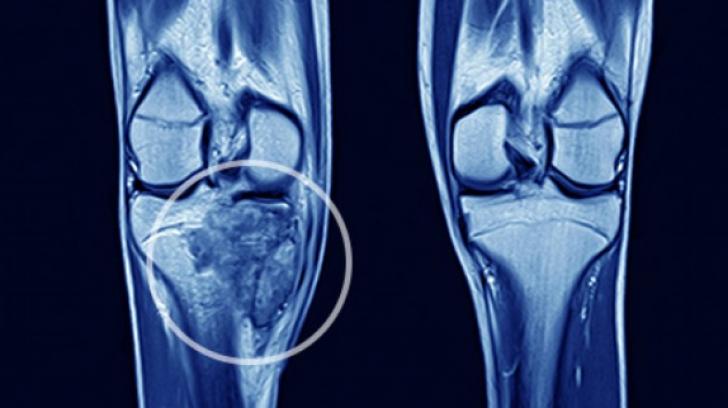 simptome cancer osos picioare
