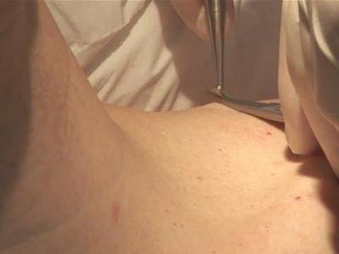 skin papilloma excision)