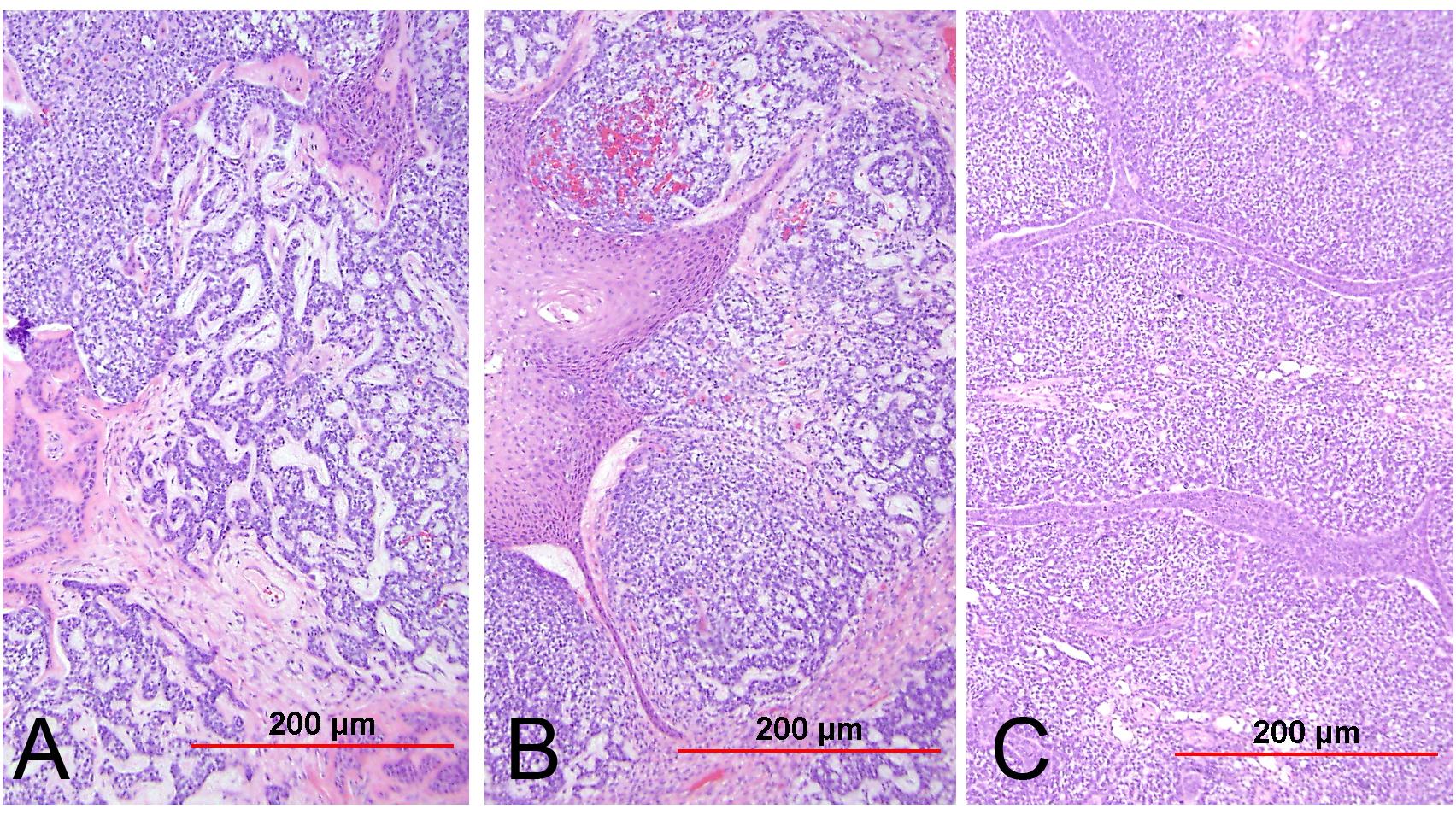 squamous cell papilloma webpathology)