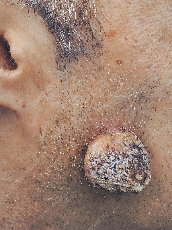squamous papilloma forehead)