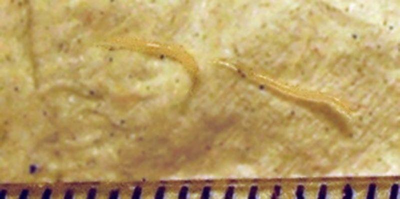 tratament paraziti intestinali bebelusi