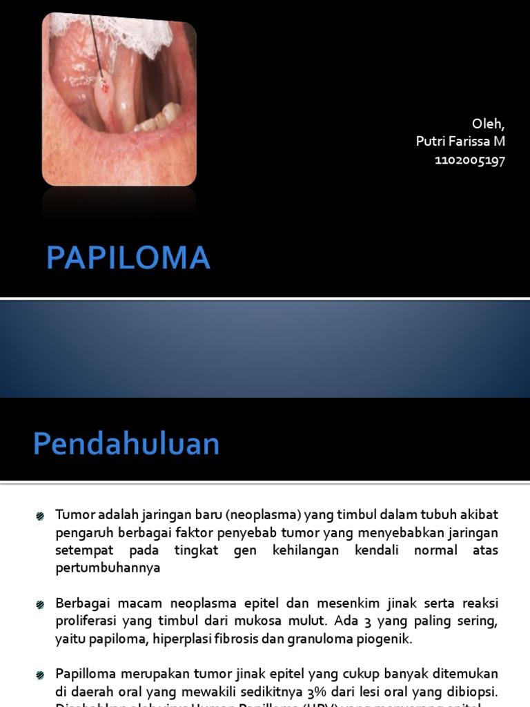 tumor papiloma adalah
