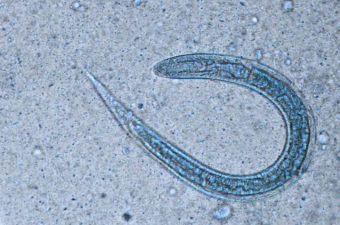 OXIURÍASE (enterobíase) - Infecção pelo Enterobius vermicularis