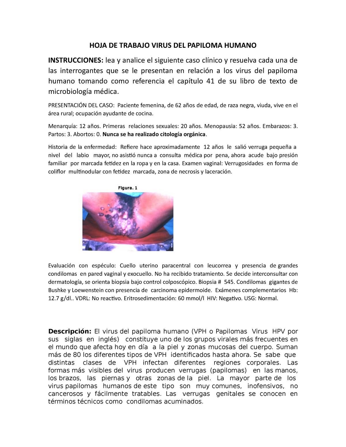 juvenile papilloma of larynx