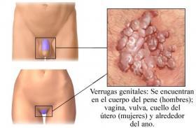 virus del papiloma humano sintomas causas y consecuencias