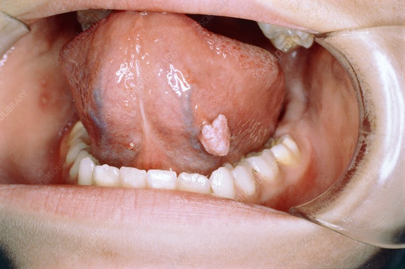 wart by mouth)