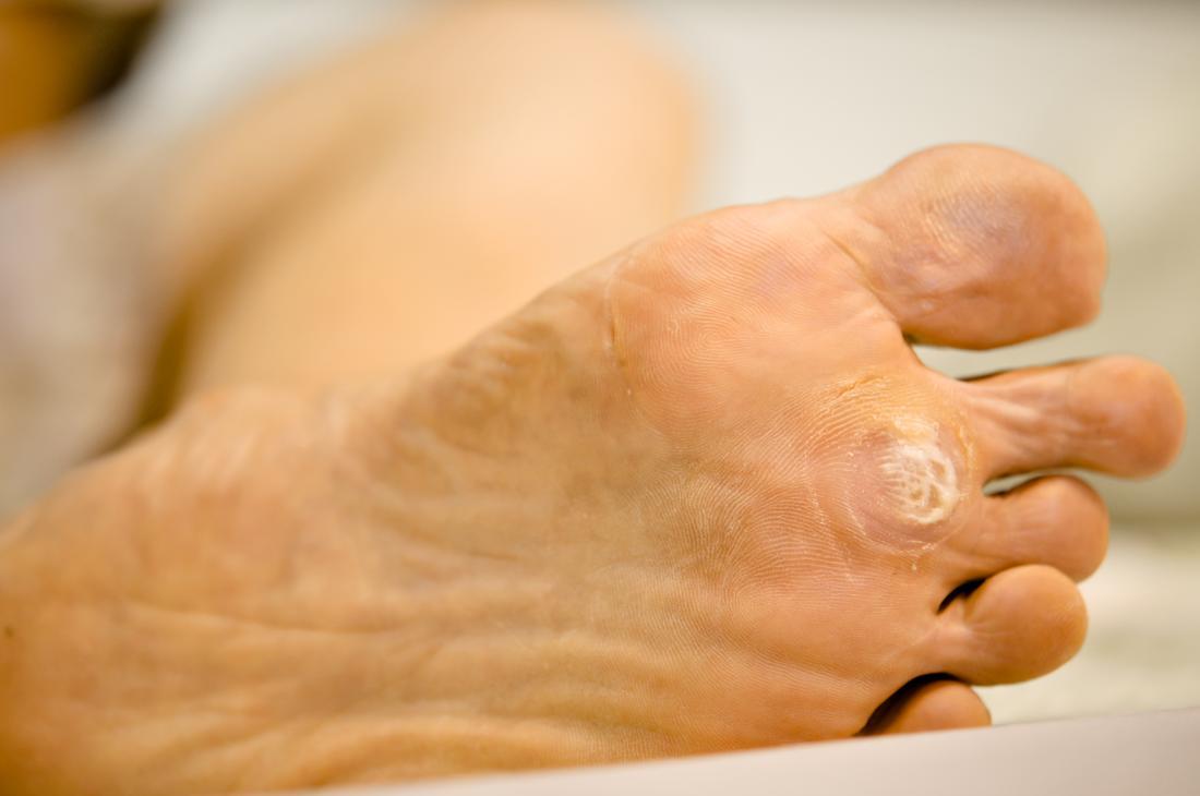 wart in foot sole)