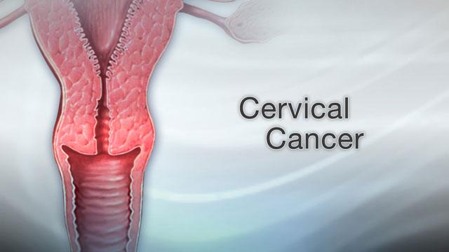 warts cervical cancer genital