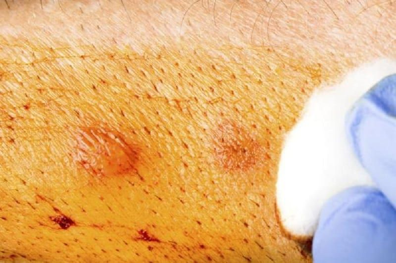 warts on older skin